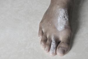 Scabies rash treatment + scabies Causes & symptoms - Scabies