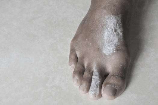 Scabies on the feet, scabies naturel home treatment and remedies