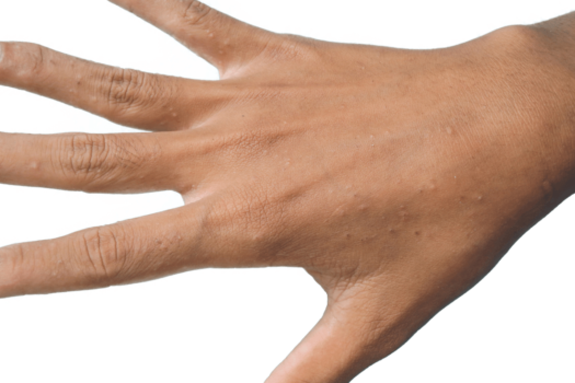Scabies on hand Skin infections