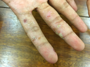 Secondary bacterial infection in scabies, pictures of scabies in hand