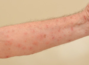 An arm severely infested with Scabies