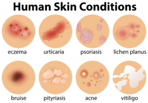 human skin conditions Complication Dermatology Disease