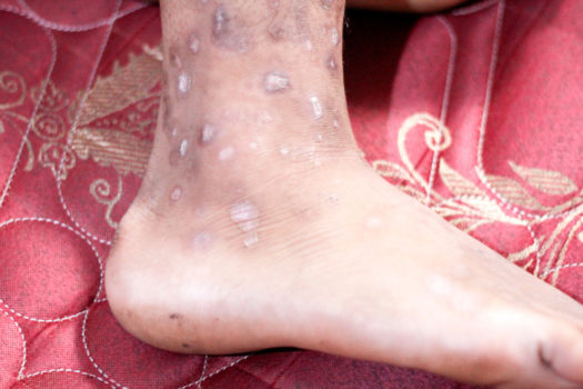 scabies at the foot