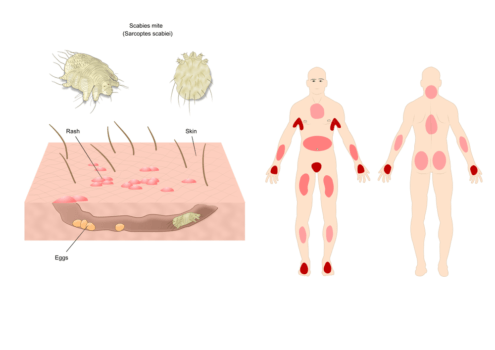 illustration, where do scabies spread in the human body?