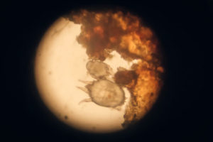 WHAT IS SCABIES MITES